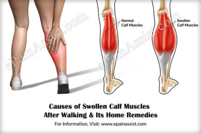 Illustration of How To Deal With Swelling From The Calf To The Sole Of The Foot?
