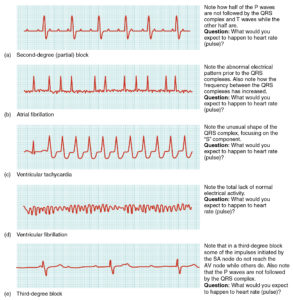 Illustration of Explanation Of The Results Of ECG Abnormalities In Electrical Activity In The Atrium?