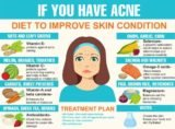 Does The Water Diet Can Overcome The Problem Of Acne On The Face?