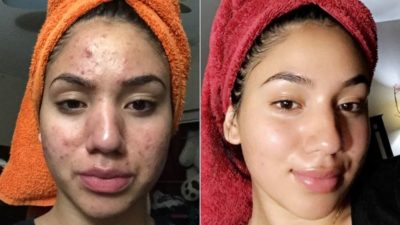 Illustration of Acne On The Forehead After Replacing Face Cream Products?