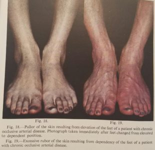 Illustration of The Soles Of The Feet Turn Blue And Don't Hurt?
