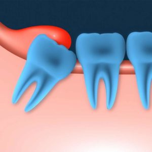 Illustration of The Tooth Feels A Change After The Extraction Process Of Molars?