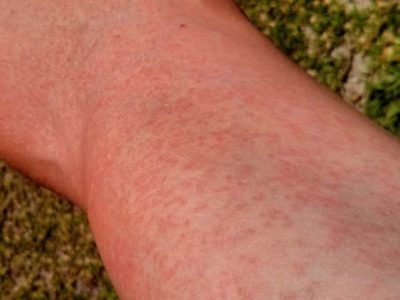Illustration of Rashes On The Wrist Accompanied By Burning And Itching After Using A Body Moisturizer?