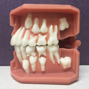 Illustration of Molar Teeth That Are Extracted At The Age Of 13, Can They Still Grow Again?
