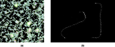 Illustration of Diplococcus Bacteria In Urine In Small Amounts?