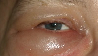 Illustration of Swelling In The Eyelids And Eye Bags Feels Sore After Wearing Contact Lenses?