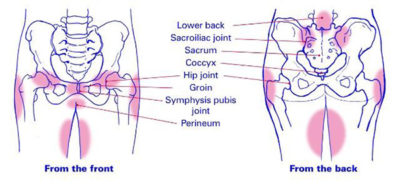 Illustration of Pain In The Pelvis That Makes It Difficult To Sit And Pain Radiating To The Thighs?