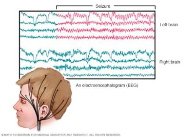 Illustration of A Description Of The Results Of The EEG (electroencephalography) Examination?