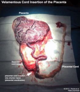 Illustration of Is The Danger Of The Placenta In Grade II Corpus Posterius?