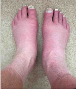 Illustration of Causes Swollen Feet After Sitting In Front Of A Computer?