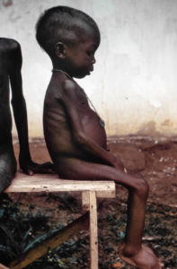 Illustration of Can Kwashiorkor Recover Completely?