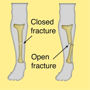 Illustration of Handling To Overcome The Fractures In The Bones Between The Thighs And Hips?