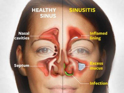 Illustration of Nasal Pain To The Eyes, Head And Ears?