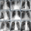 Explanation Of The Chest X-ray X-ray Suspected Bronchitis?