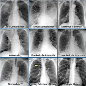 Illustration of Explanation Of The Chest X-ray X-ray Suspected Bronchitis?
