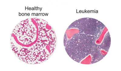 Illustration of Emphasis On Bone Marrow (BM) In Patients With Leukemia?