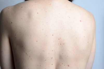 Illustration of Do People Who Have Lots Of Moles Risk Getting Skin Cancer?