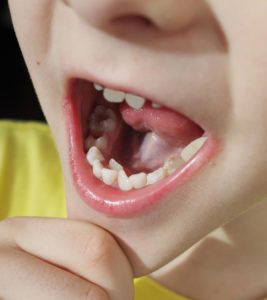 Illustration of The Teeth Of An 18-month-old Child Grow On The Roof Of The Mouth Behind The Front Teeth?