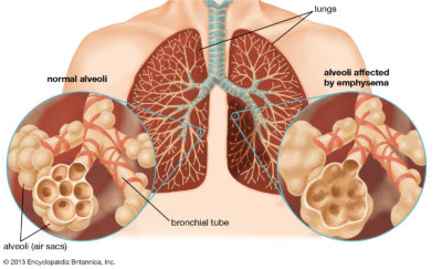 Illustration of What Causes The Destruction Of The Lungs?