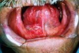 Prolonged Ulcers On The Head And Almost 1 Year?
