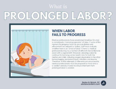 Illustration of How To Deal With The Trauma Of Labor?