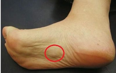 Illustration of Hard Lumps On The Soles Of The Feet That Have Been Chronic?