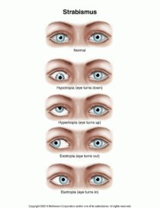 Illustration of The Eyes Move Quickly While Looking At The Focus To One Point?