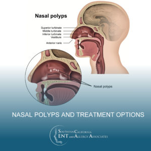Illustration of Are Nasal Congestion To The Ears A Sign Of Polyps?