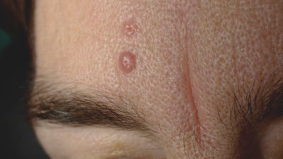 Illustration of HIV Sufferers Rub Against The Skin Until It Hurts, Can It Transmit HIV?