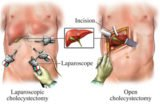 Stomach Feels Good After Gallstone Laparoscopic Surgery?