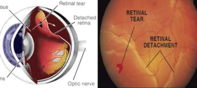 Illustration of How To Avoid Retinal Detachment In Nearsightedness?