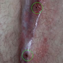 Illustration of Lumps Accompanied By Discharge Of Yellow Mucus From The Anus During Pregnancy?