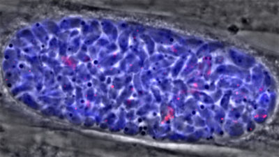 Illustration of Can Toxoplasma Bacteria Be Completely Gone?