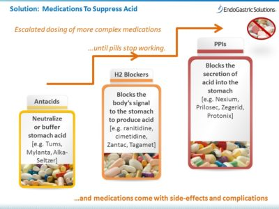 Illustration of Differences In Drug Content For Stomach Acid?
