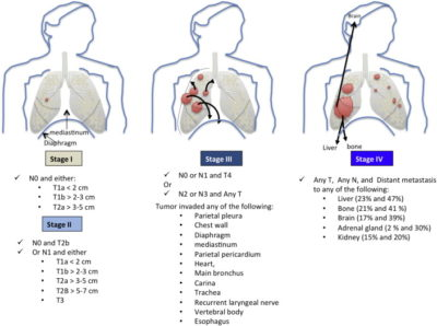 Illustration of How To Cure Brain Tumors And Lung Cancer At The Age Of 47 Years?
