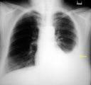 Explanation Of The Results Of Pleural Effusion X-rays?