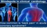 Left Chest Pain Radiating To The Back?