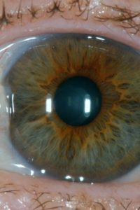 Illustration of The Eyeball Is Brown And The Right Eye Feels Aching?