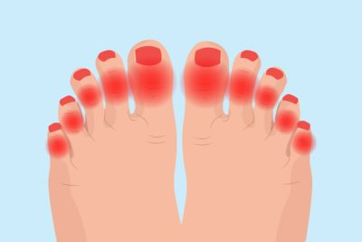 Illustration of Treatment For Lumps In The Swollen Toes Accompanied By Pain?