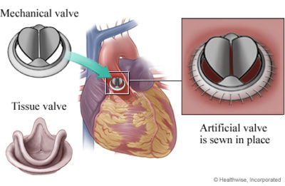 Illustration of MVR Surgery Procedure To Deal With Heart Valve Leaks?