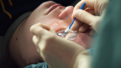 Illustration of Can Sufferers Of Heart Disease Do Lasik Eye?