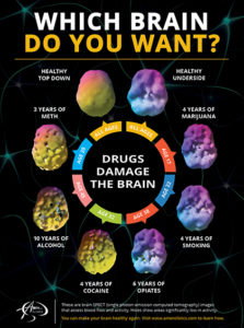 Illustration of Can Damaged Brain PFCs Be Cured With Drugs Such As Triterpenoids And Piracetam?