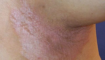 Illustration of The Skin On The Groin Peels But Does Not Cause Itching?