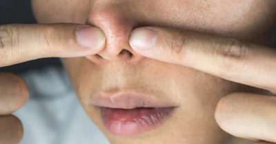 Illustration of What Causes Reddish Spots Such As Sores Under The Nose?