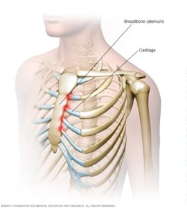 Illustration of Can Costchondritis (cartilage Inflammation) Spread?