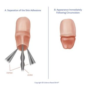 Illustration of Is Circumcision Safe In Adults Who Have A History Of Keloids?