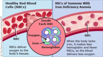 Illustration of Is Iron Deficiency Anemia Dangerous?