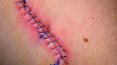 Illustration of Normal Post-natal Suture Wound Conditions Have Open Flesh And No Suture Thread?