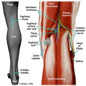 Illustration of The Cause Appears Two Lumps In The Knee Joint?
