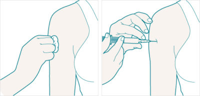 Illustration of Can I Use Injection Contraception In Patients With Swelling Of The Liver?